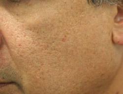 El alcohol etílico para que del acné