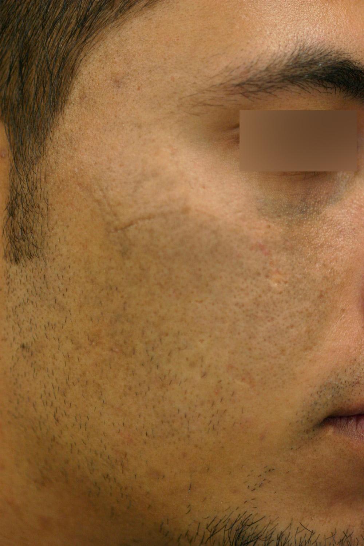Después de tratamientos con láser Nd-YAG conmutado
