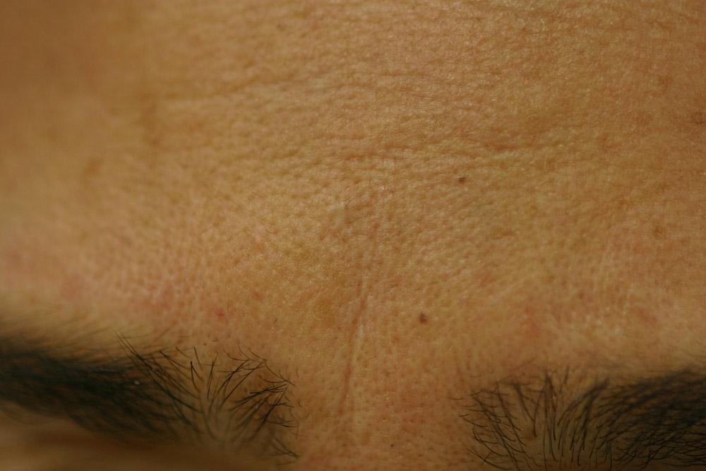 Después - Seguimiento posterior a 10 años de la resección con técnica de afeitado con láser
