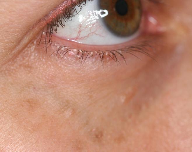 Resultado con técnica de afeitado con laser de CO2