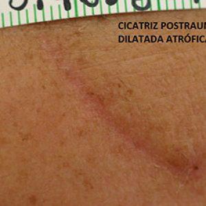 Cicatriz postauma dilatada atrófica