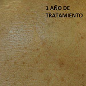 Al año de tratamiento