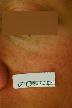 Desaparición de la lesión con láser Nd-YAG conmutado
