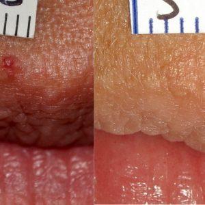 Tratamiento de lesiones vasculares con láser