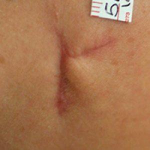 Cicatriz posquirúrgica con desnivel y retracción