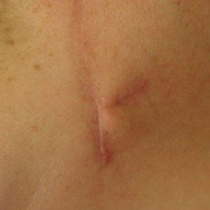 Cicatriz posquirúrgica liberada con desnivel