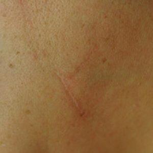Cicatriz posquirúrgica liberada y nivelada