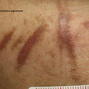 Cicatriz postraumática pigmentada