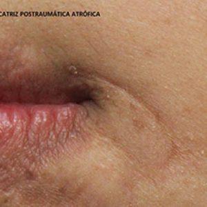 Cicatriz postraumática atrófica