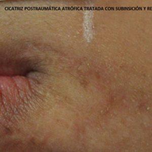 Cicatriz postraumática atrófica tratada con subinsición y relleno