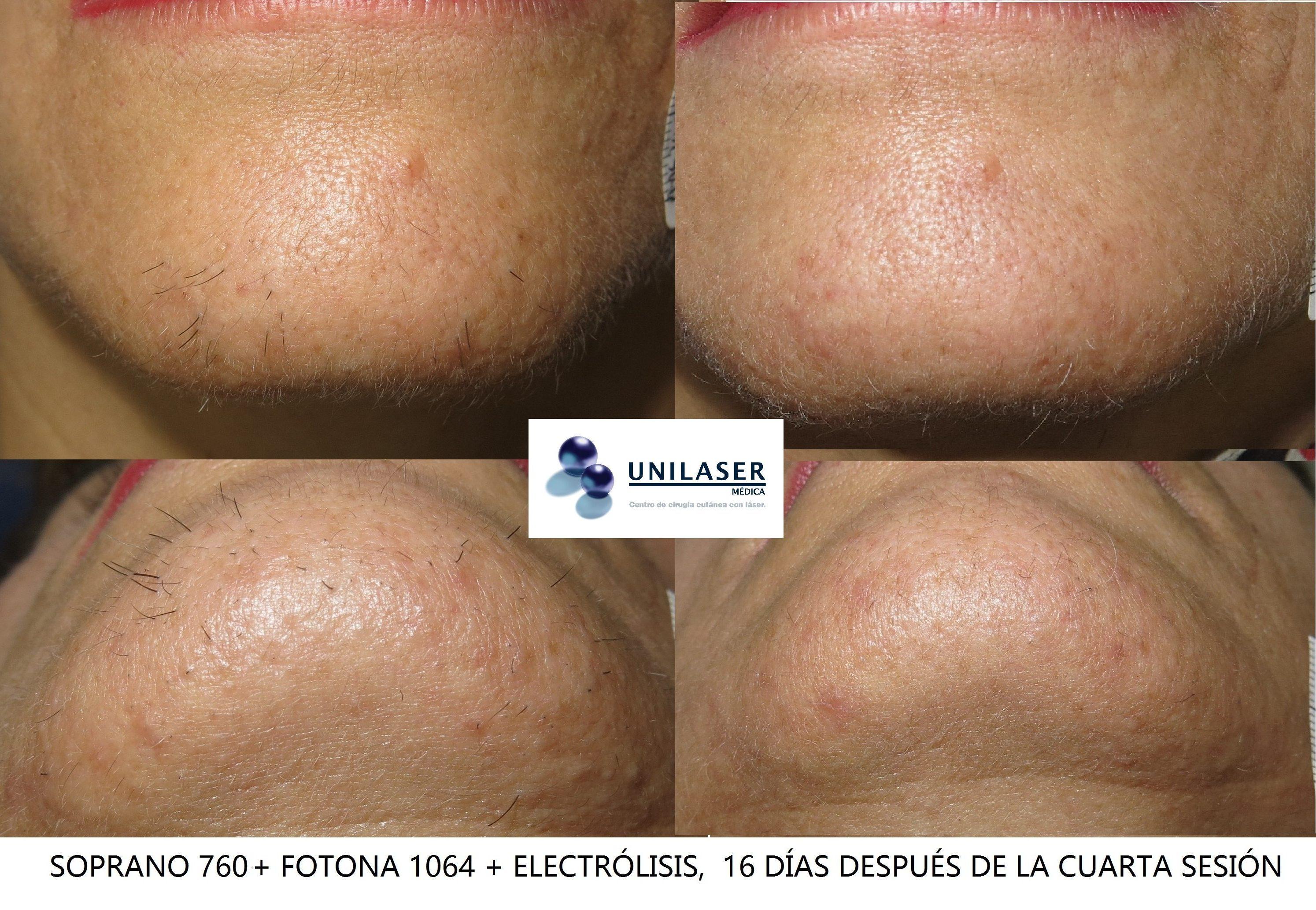 Electrólisis de pelos rojos de la barbilla resistentes al láser Soprano