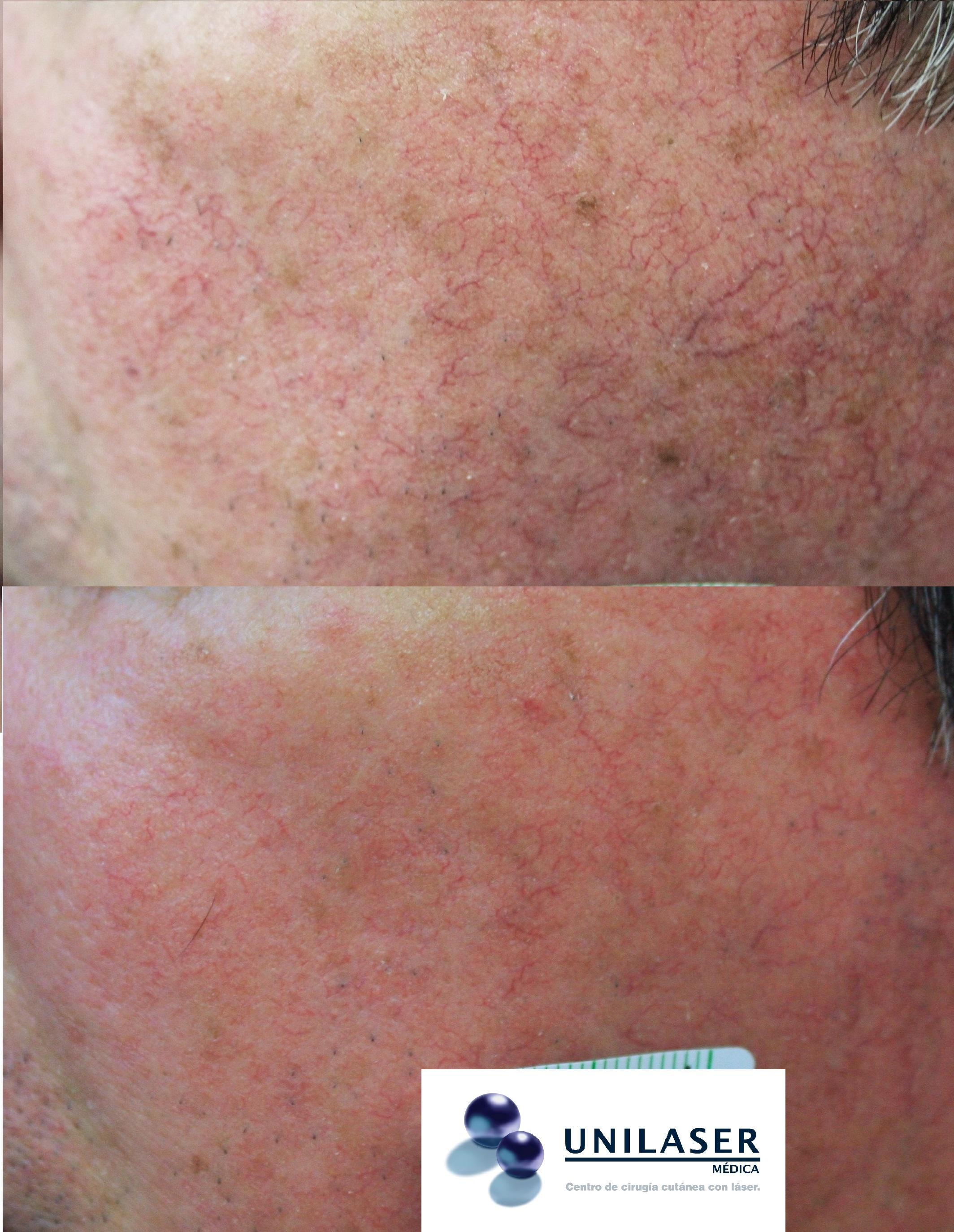 láser para lesiones vasculares de la cara