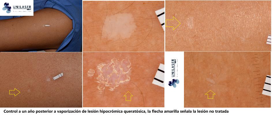 Rejuvenecimiento láser de la piel