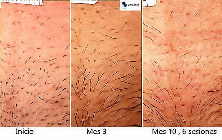 Inicio de la depilación en el área del bikini