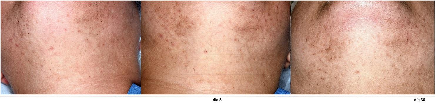 Rápida disminución del pelo en la barba con láser al día 30