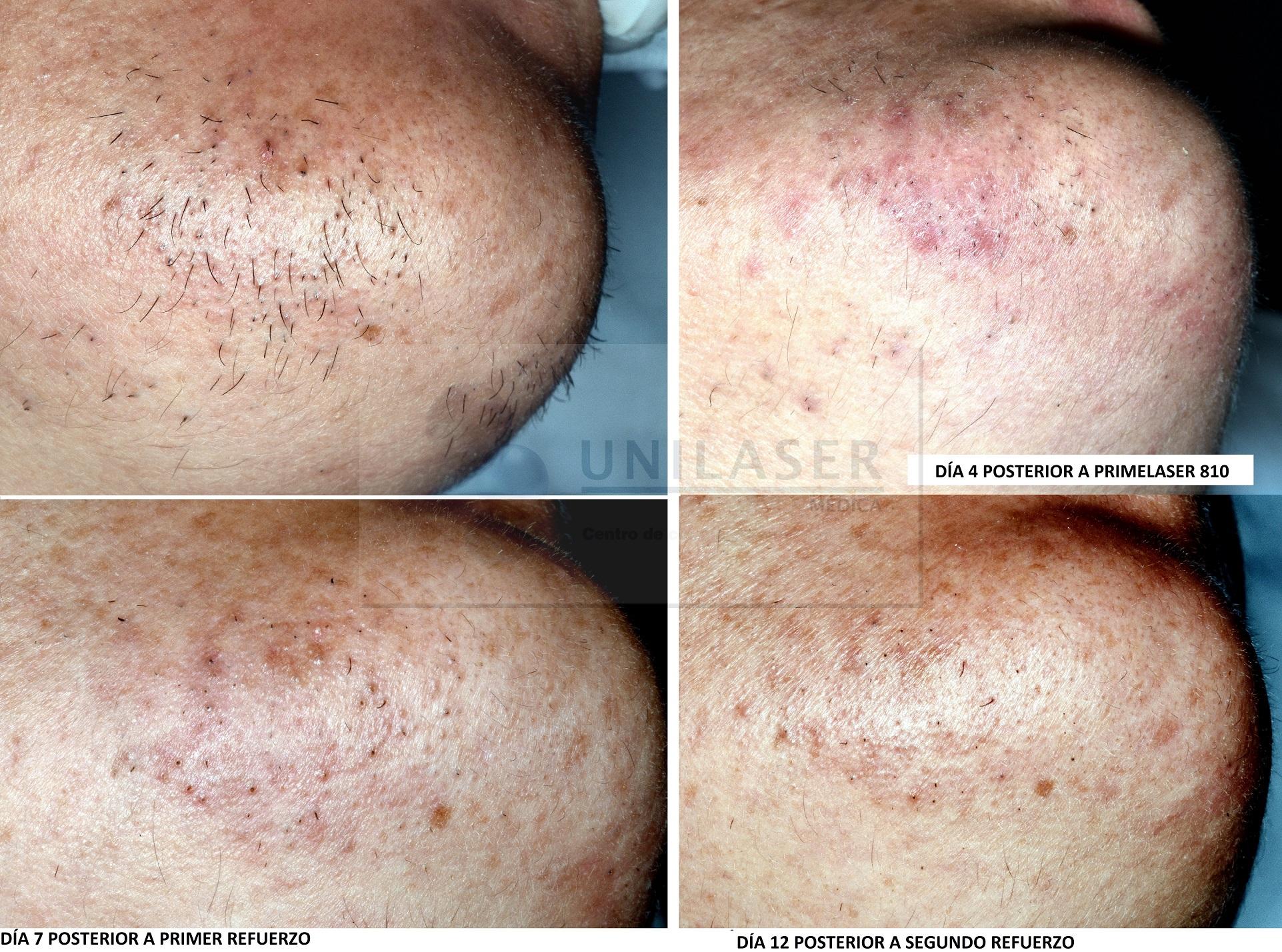 Rápida diminución de pelo grueso en barbilla mediante depilación láser
