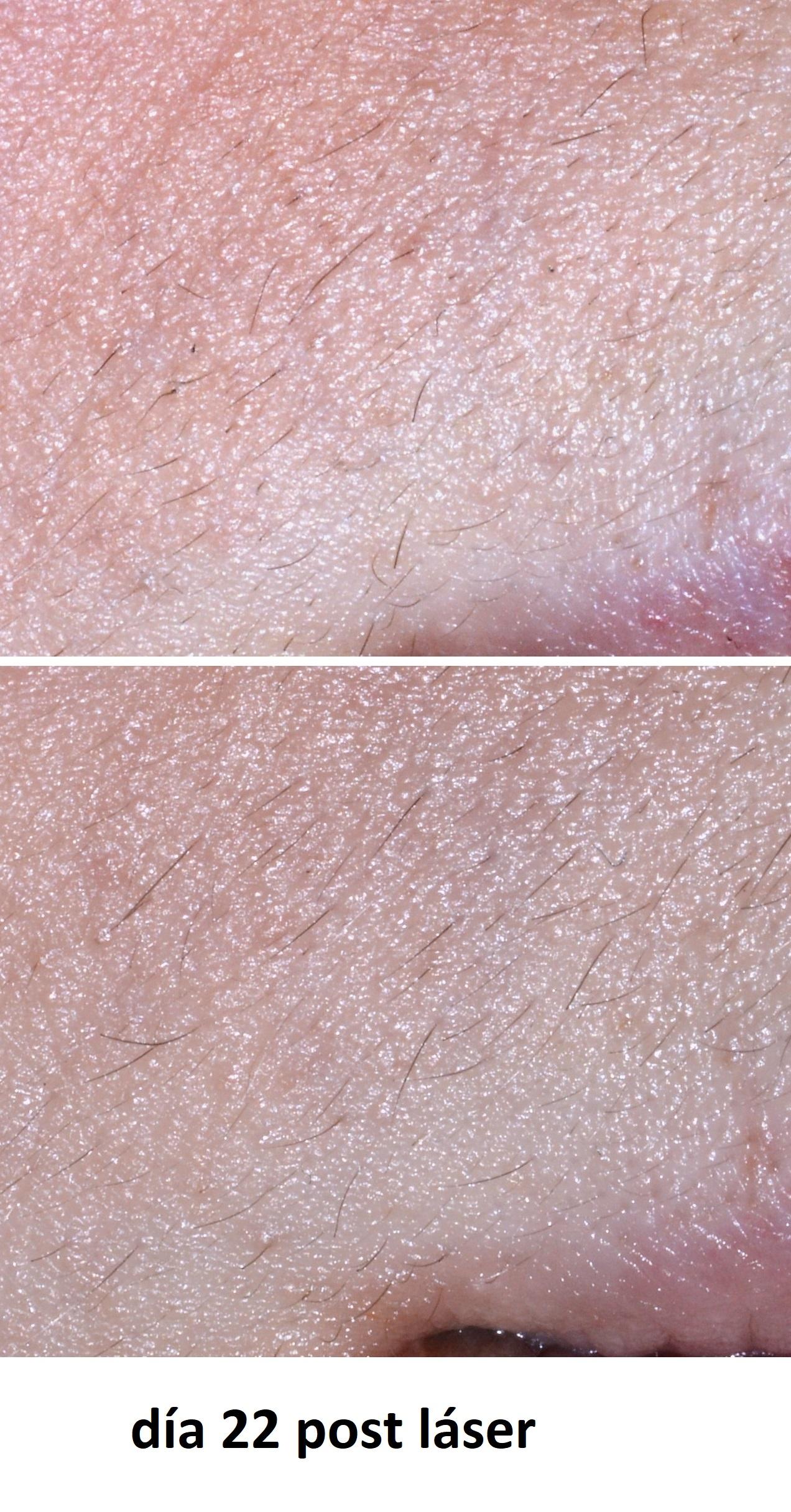 Depilación con láser Alexandrita del labio superior