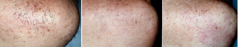 Depilación láser de la barbilla primer y segundo mes de tratamiento