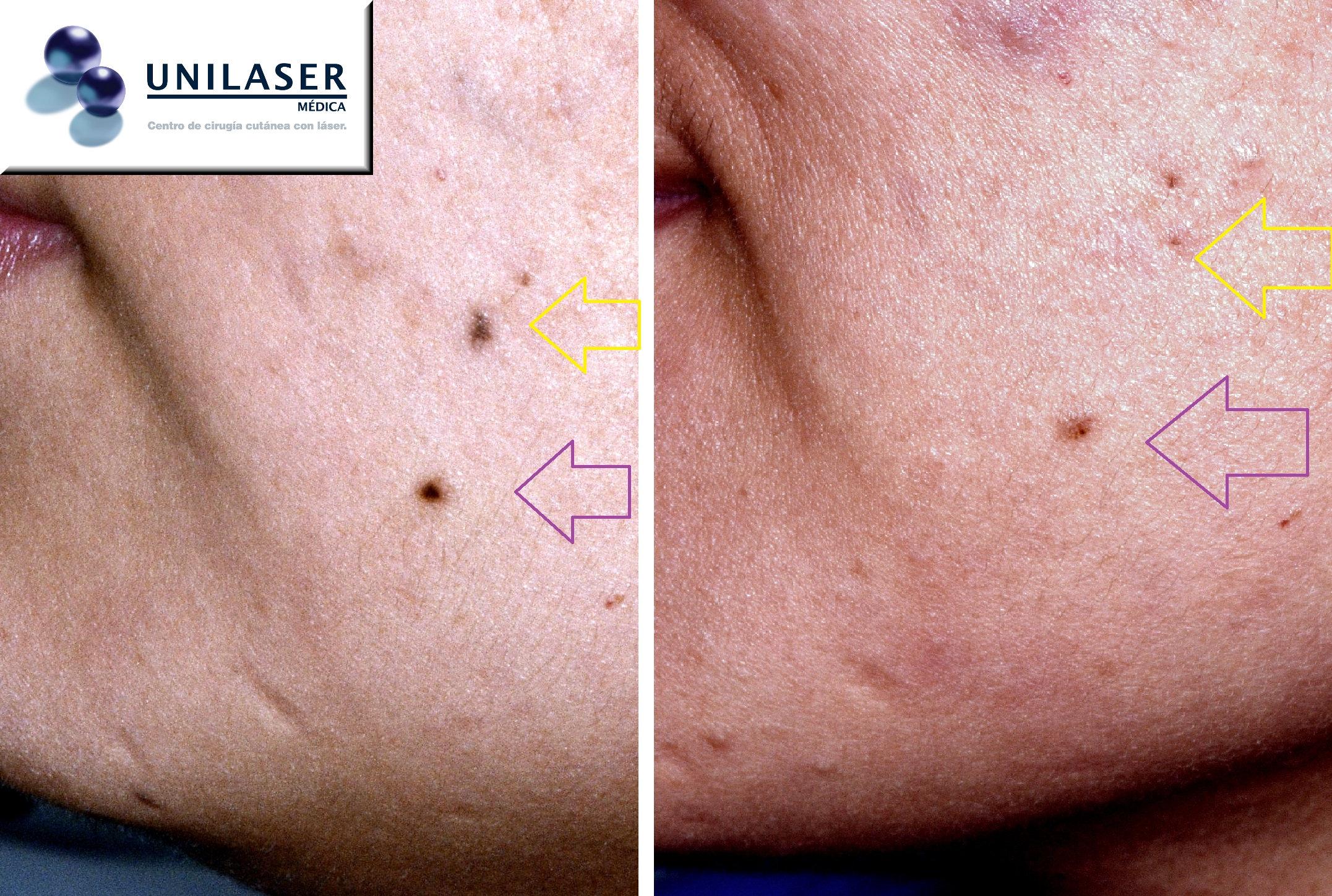 Tratamiento láser de lunares de la cara