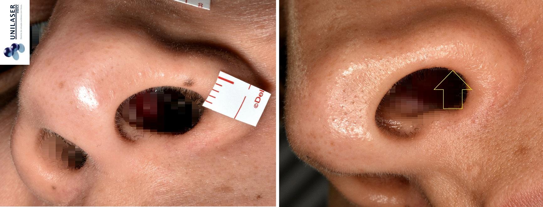 Remoción de lunar del ala nasal con láser Erbio-YAG Fotona