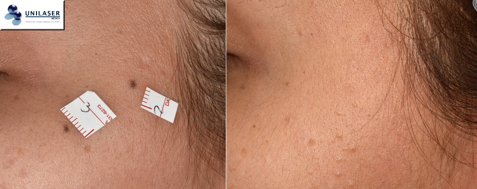 Remoción de lunares de la cara con láser, técnica quirúrgica