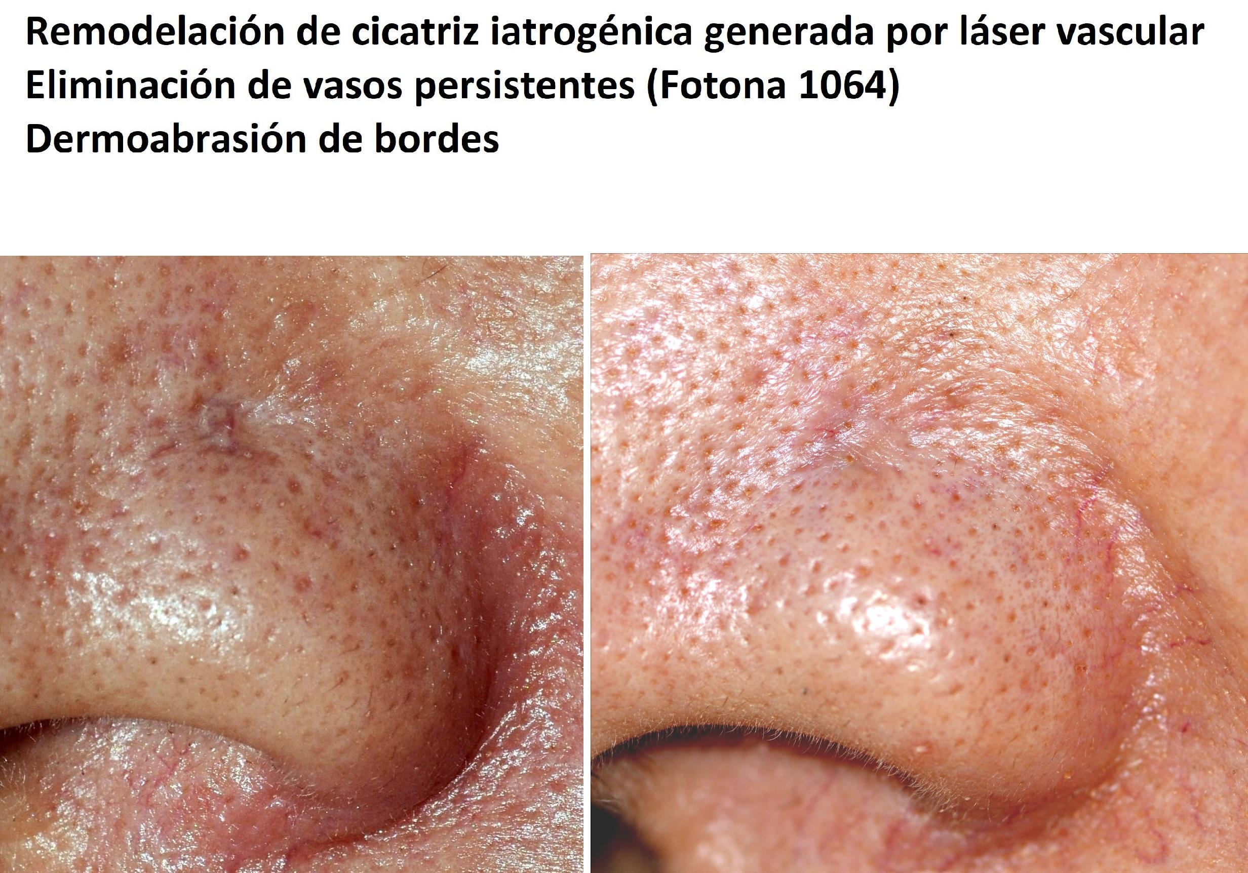 Resultado final del tratamiento de cicatriz del ala nasal causada por láser vascular